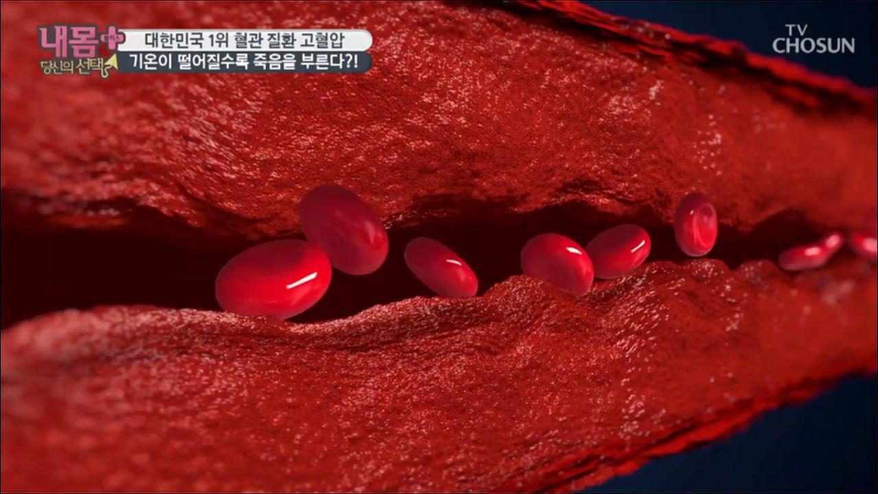 내 몸 플러스 125회