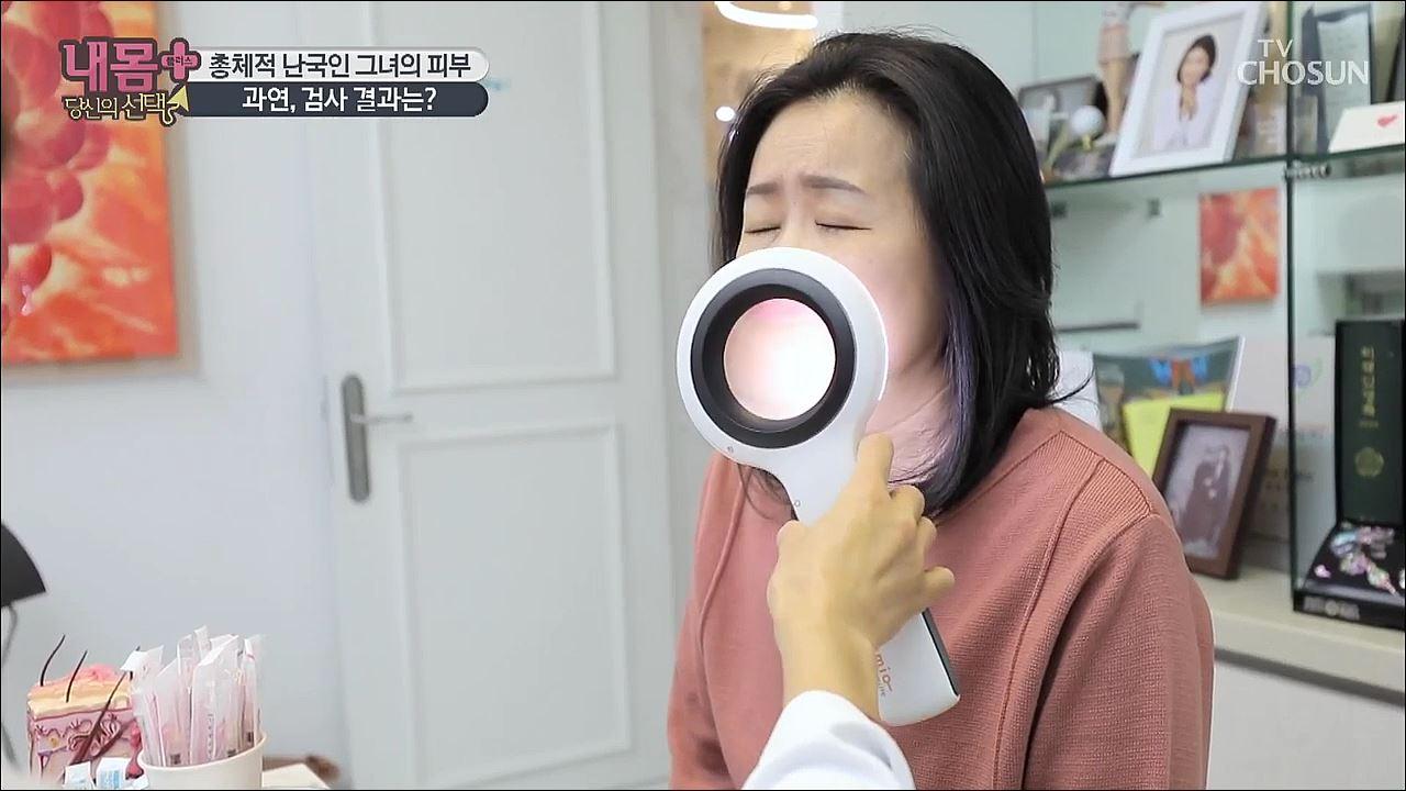 내 몸 플러스 139회