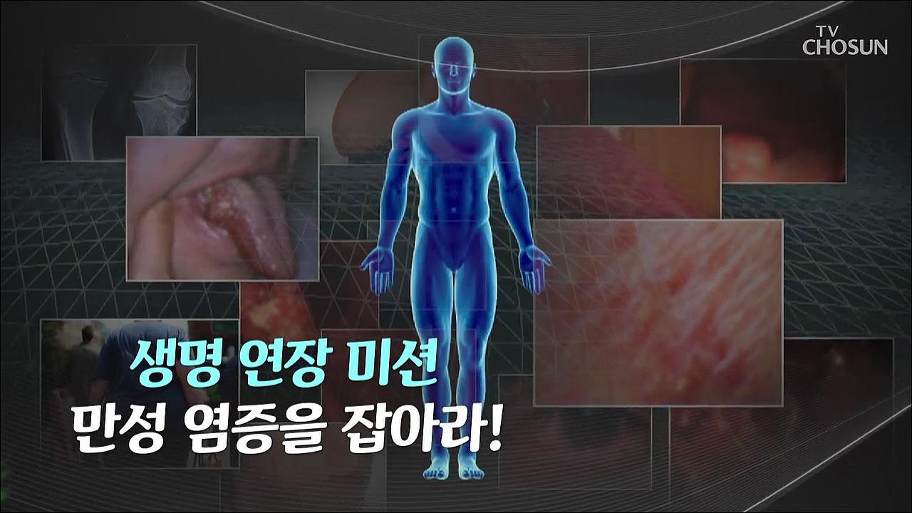 특집다큐 42회 - 생명연장 미션 세포 건강을 지켜라
