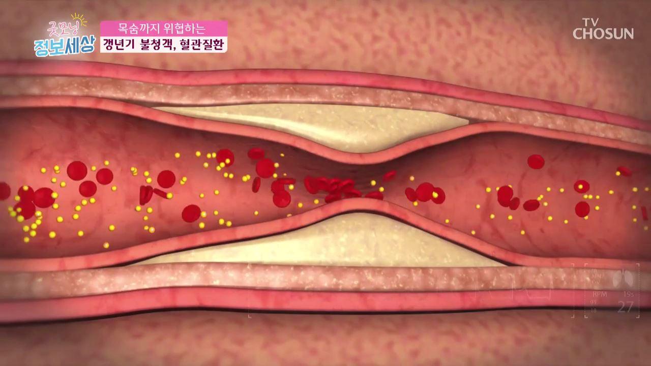 굿모닝 정보세상 160회