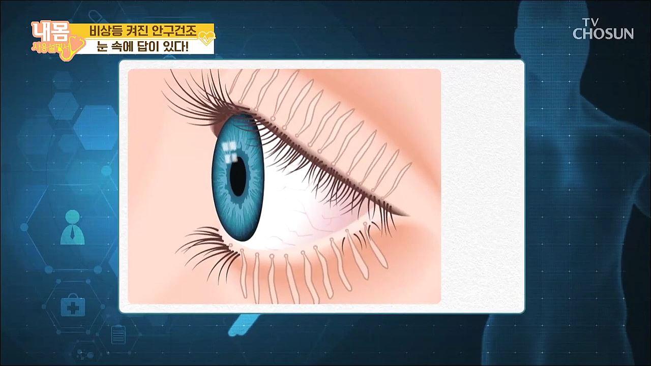 내 몸 사용 설명서 301회