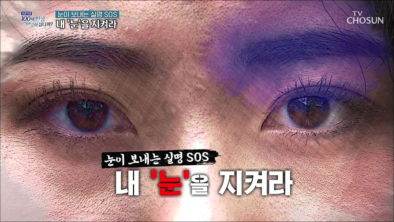 건강다큐 87회 - 눈이 보내는 실명, SOS 내 '눈'을 지켜라