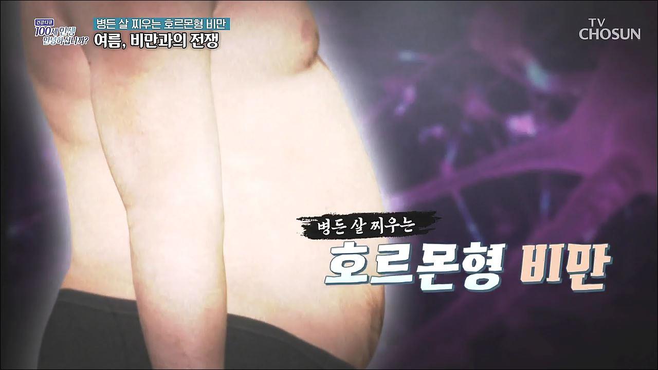건강다큐 99회 - 병든 살 찌우는 호르몬형 비만