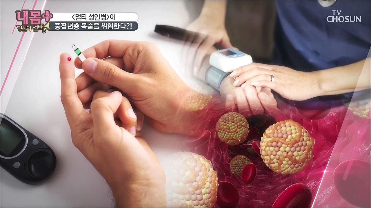 내 몸 플러스 209회